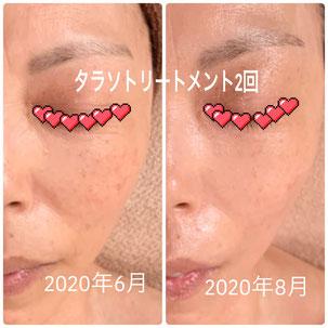 美zen筋骨フェイシャル before after