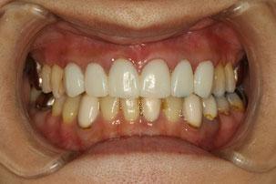 仮歯で歯茎の引き締まりを待ちます.