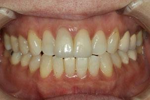 下の前歯を部分矯正