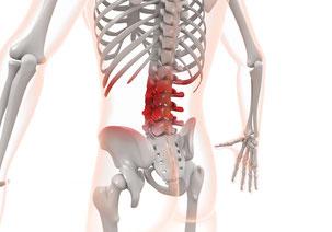 ぎっくり腰・急性腰痛は腰椎の問題が原因となっていることがあります