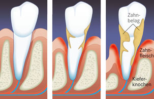 Entstehung der Parodontitis