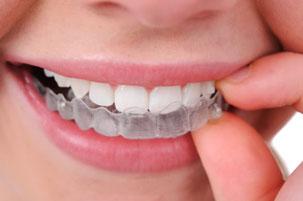 Hauchdünne Schiene zur Zahnkorrektur