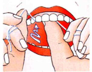 Zahnseide im OK