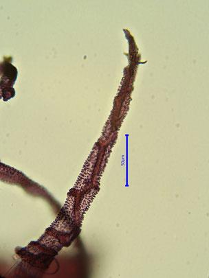 Bild 47: Wimper des Endostoms mit Papillen