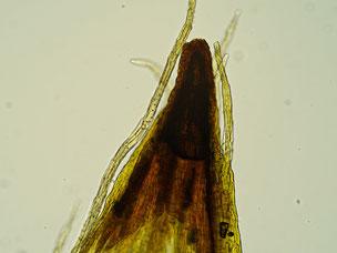 Bild 38: Spitze der Kalyptra mit Haaren