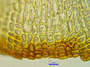 Bild 37: Zellen des Deckelrandes