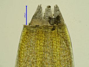 Bild 42: oberer Teil einer Kapsel mit Peristom