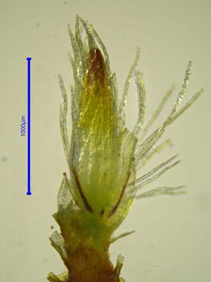 Junger Sporophyt frigelegt