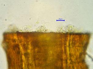Cytosol tritt an der Schnittstelle aus