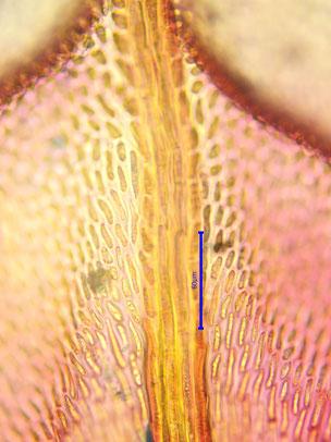 Deuterzellen der Blattbasis