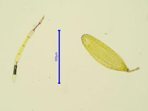 Bild 33: Antheridium und Paraphyse