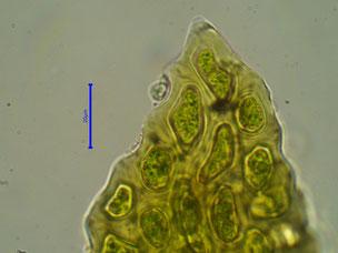 Zellen der Blattspitze