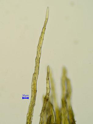 Ulota coarctata Haare der Kalyptra