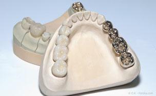 Kronen und Brücken aus Metall und aus Metallkeramik