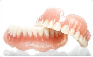 """Die """"Dritten"""": Wenn alle Zähne fehlen."""