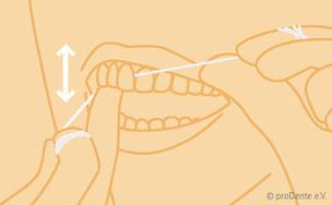 Wir demonstrieren Ihnen in der Praxis gerne, wie Sie die Zahnseide richtig benutzen!
