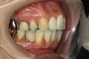 仮歯を入れた状態