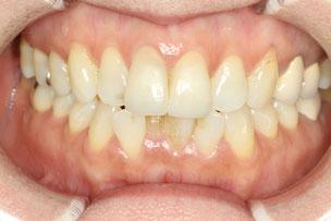 下の前歯の歯並びを治療