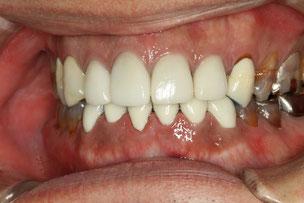 テトラサイクリン変色歯 治療後