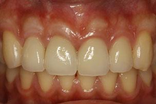 差し歯の下がった歯茎を回復させました。