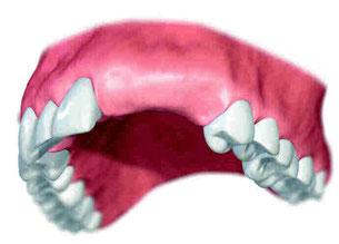 Verlust mehrerer Zähne