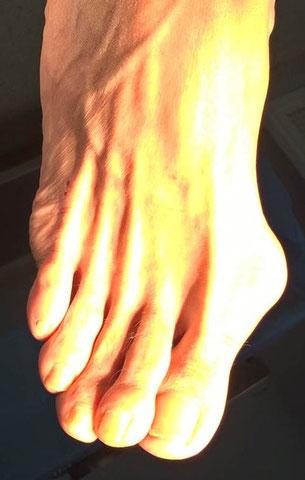 foot deformity pain, orthopaedic surgeon Dr Rémi Toulouse Croix du Sud