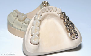 Bei Zahnersatz sollte die PZR in kürzeren Abständen erfolgen. (© O.K. - Fotolia.com)