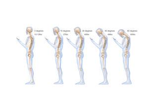 姿勢 腰痛 肩こりの原因