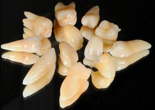 歯根付きポーセレン