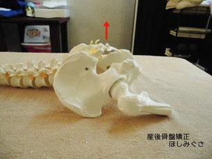 骨盤をうつ伏せで横から見た状態。