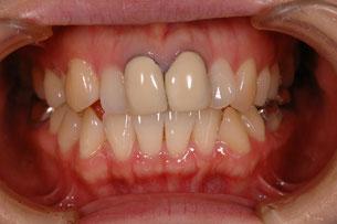 治療前 歯の色と形が気になります