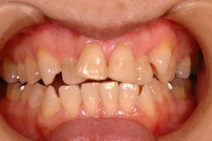 歯のならんでいない状態