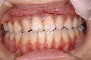 治療前の歯の色と形