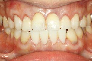 歯茎と審美歯科