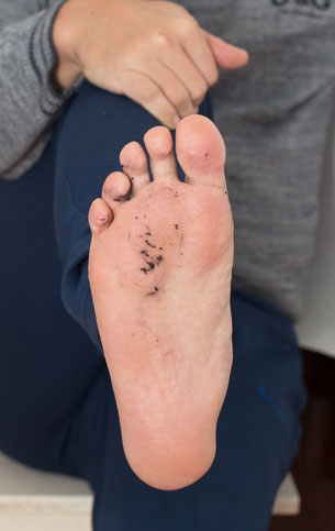 Bild: Fusselnde Socken, Strumpf-Klaus
