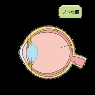 ブドウ膜炎