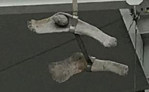 マッコウクジラ 骨盤痕跡 後⇔前