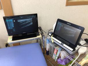 はたの接骨院 超音波画像診断装置