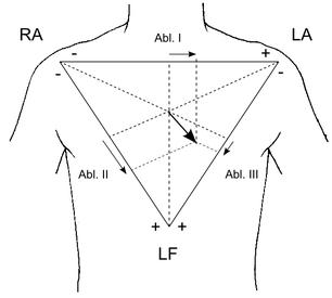 EKG Einthoven Dreieck