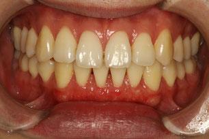 矯正治療と歯茎の下がり