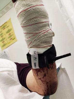 Compresión de la arteria principal
