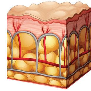 Anlagerung von Fettpölsterchen bei der Cellulite
