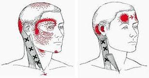 頭痛は、お薬飲んで収めようとするのですが、首筋や後頭骨からくることも