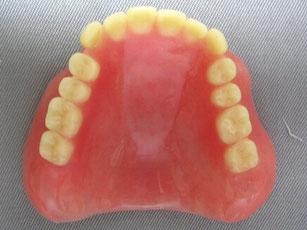 総義歯(レジン床)