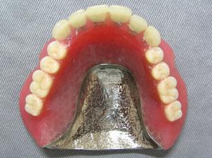 総義歯(金属床)