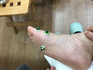 足のツボに『せんねん灸』をすえているところ