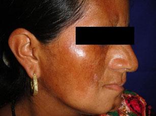 Esclerodermia o morfea circunscrita