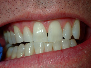 No room to lengthen the teeth.