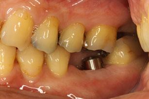 インプラントの上に入れる歯
