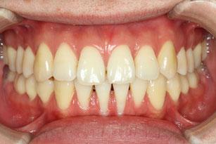 歯茎の下がりと矯正